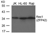 Western blot of extracts from JK, HL-60 and Raji cells using Rex1 (ZFP42) antibody.