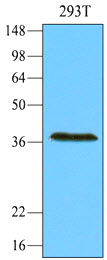 Cell lysates of 293T (30 ug) were resolved by SDS-PAGE, transferred to NC membrane and probed with anti-human REXO1 (1:1000). Proteins were visualized using a goat anti-mouse secondary antibody conjugated to HRP and an ECL detection system.
