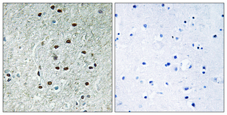 Immunohistochemistry analysis of paraffin-embedded human brain, using REXO1 Antibody. The picture on the right is blocked with the synthesized peptide.