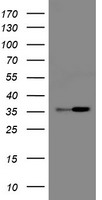 HEK293T cells were transfected with the pCMV6-ENTRY control (Left lane) or pCMV6-ENTRY RFC2 (Right lane) cDNA for 48 hrs and lysed. Equivalent amounts of cell lysates (5 ug per lane) were separated by SDS-PAGE and immunoblotted with anti-RFC2.