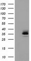 HEK293T cells were transfected with the pCMV6-ENTRY control (Left lane) or pCMV6-ENTRY RFPL1 (Right lane) cDNA for 48 hrs and lysed. Equivalent amounts of cell lysates (5 ug per lane) were separated by SDS-PAGE and immunoblotted with anti-RFPL1.