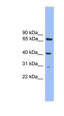 RFXAP antibody LS-C116104 Western blot of Mouse Kidney lysate.  This image was taken for the unconjugated form of this product. Other forms have not been tested.