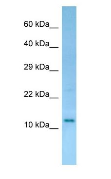 RGD1308134 antibody Western Blot of Rat Small Intestine.  This image was taken for the unconjugated form of this product. Other forms have not been tested.