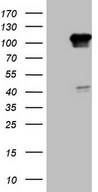RGL2 Antibody - HEK293T cells were transfected with the pCMV6-ENTRY control. (Left lane) or pCMV6-ENTRY RGL2. (Right lane) cDNA for 48 hrs and lysed. Equivalent amounts of cell lysates. (5 ug per lane) were separated by SDS-PAGE and immunoblotted with anti-RGL2. (1:2000)