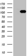 RGL2 Antibody - HEK293T cells were transfected with the pCMV6-ENTRY control (Left lane) or pCMV6-ENTRY RGL2 (Right lane) cDNA for 48 hrs and lysed. Equivalent amounts of cell lysates (5 ug per lane) were separated by SDS-PAGE and immunoblotted with anti-RGL2 (1:2000).
