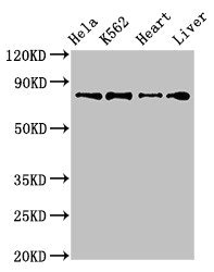RGL2 Antibody - Positive Western Blot detected in Hela whole cell lysate, K562 whole cell lysate, Mouse heart tissue, Rat liver tissue. All lanes: RGL2 antibody at 3.2 µg/ml Secondary Goat polyclonal to rabbit IgG at 1/50000 dilution. Predicted band size: 84, 51 KDa. Observed band size: 84 KDa