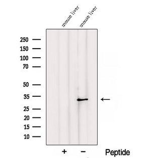 RGN / Regucalcin Antibody - Western blot analysis of extracts of mouse liver tissue using RGN/SMP30 antibody. The lane on the left was treated with blocking peptide.
