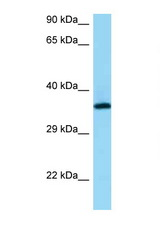 RGR antibody Western blot of PANC1 Cell lysate. Antibody concentration 1 ug/ml.  This image was taken for the unconjugated form of this product. Other forms have not been tested.