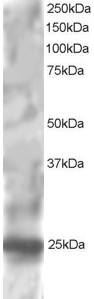 Antibody staining (1 ug/ml) of HepG2 lysate (RIPA buffer, 30 ug total protein per lane). Primary incubated for 1 hour. Detected by Western blot of chemiluminescence.