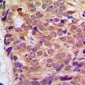 Immunohistochemical analysis of RGS10 staining in human breast cancer formalin fixed paraffin embedded tissue section. The section was pre-treated using heat mediated antigen retrieval with sodium citrate buffer (pH 6.0). The section was then incubated with the antibody at room temperature and detected using an HRP conjugated compact polymer system. DAB was used as the chromogen. The section was then counterstained with hematoxylin and mounted with DPX.