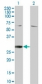 Western blot of RGS18 in 1) transfected 293T cells and 2) untransfected 293T cells using LS-C148190 at 1:500.