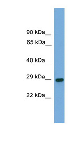 RGS19 antibody Western blot of Fetal Brain lysate. This image was taken for the unconjugated form of this product. Other forms have not been tested.