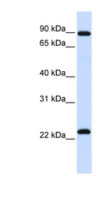 RGS19 antibody Western blot of Fetal Lung lysate. This image was taken for the unconjugated form of this product. Other forms have not been tested.