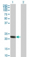 RGS5 Antibody - Western blot of RGS5 in 1) transfected 293T cells and 2) untransfected 293T cells.