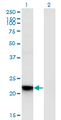 Western Blot analysis of RGS5 expression in transfected 293T cell line by RGS5 monoclonal antibody (M01), clone 4E12.Lane 1: RGS5 transfected lysate (Predicted MW: 20.9 KDa).Lane 2: Non-transfected lysate.