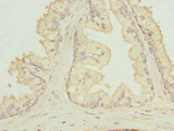 Immunohistochemistry of paraffin-embedded human prostata cancer at dilution 1:100