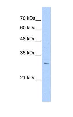 PANC1 cell lysate. Antibody concentration: 1.0 ug/ml. Gel concentration: 12%.  This image was taken for the unconjugated form of this product. Other forms have not been tested.