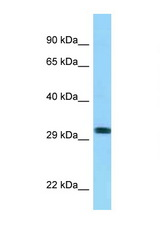 RHD antibody Western blot of 8226 Cell lysate. Antibody concentration 1 ug/ml.  This image was taken for the unconjugated form of this product. Other forms have not been tested.