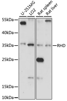 RHD Antibody - Western blot analysis of extracts of various cell lines, using RHD antibody at 1:1000 dilution. The secondary antibody used was an HRP Goat Anti-Rabbit IgG (H+L) at 1:10000 dilution. Lysates were loaded 25ug per lane and 3% nonfat dry milk in TBST was used for blocking. An ECL Kit was used for detection and the exposure time was 15s.