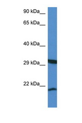RHEBL1 antibody LS-C135286 Western blot of Mouse Kidney lysate. Antibody concentration 1 ug/ml.  This image was taken for the unconjugated form of this product. Other forms have not been tested.
