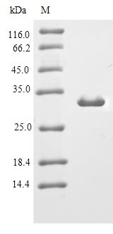 IL-10 Protein - (Tris-Glycine gel) Discontinuous SDS-PAGE (reduced) with 5% enrichment gel and 15% separation gel.