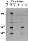 Rhinovirus Antibody - Lysates of HeLa cells infected with RV serotypes 1A, 2, 14, 16 or 49 and blotted with #18758.