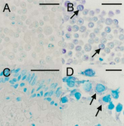 Rhinovirus Antibody - IHC staining for viral capsid protein with #18758: (A) Uninfected HeLa cells, (B) HRV16-infected HeLa cells, (C) Negative bronchial biopsy section, (D) Positive bronchial biopsy section.