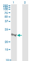 Western blot of RHOA expression in transfected 293T cell line. Lane 1: RHOA transfected lysate(21.8 KDa). Lane 2: Non-transfected lysate.