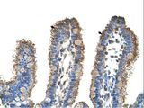 RHOBTB1 antibody ARP41883_P050-NP_055651-RHOBTB1(Rho-related BTB domain containing 1) Antibody was used in IHC to stain formalin-fixed, paraffin-embedded human intestine.  This image was taken for the unconjugated form of this product. Other forms have not been tested.