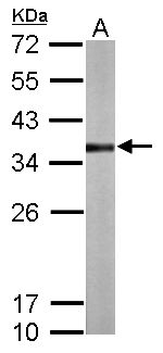 Sample (50 ug of whole cell lysate). A: Mouse liver. 12% SDS PAGE. Rhodanese / TST antibody diluted at 1:1000.