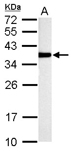 TST antibody detects TST protein by Western blot analysis. A. 50 ug rat liver lysate/extract. 12 % SDS-PAGE. TST antibody dilution:1:1000