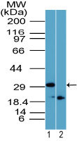 Rhox11 Antibody - Western blot of Rhox-11 in 12 day mouse testis in the 1) absence and 2) presence of immunizing peptide using Polyclonal Antibody to Rhox-11 at 1:2000. Goat anti-rabbit Ig HRP secondary antibody, and PicoTect ECL substrate solution, were used for this test.
