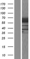 RIC8B Protein - Western validation with an anti-DDK antibody * L: Control HEK293 lysate R: Over-expression lysate