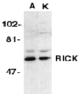 RICK / RIP2 Antibody - Western blot analysis of RICK in A431 (A) and K562 (K) whole cell lysate with RICK antibody at 1 g/ml.