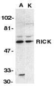 Western blot of RICK in A431 (A) and K562 (K) whole cell lysate with RICK antibody at 1 ug/ml.