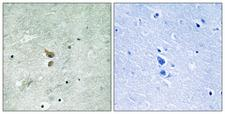 RICK / RIP2 Antibody - P-peptide - + Immunohistochemistry analysis of paraffin-embedded human brain tissue using RIPK2 (Phospho-Ser176) antibody.