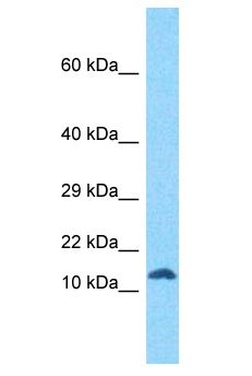 RIIAD1 Antibody - RIIAD1 antibody Western Blot of Jurkat. Antibody dilution: 1 ug/ml.  This image was taken for the unconjugated form of this product. Other forms have not been tested.