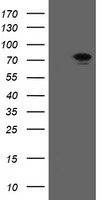 RIOK2 Antibody - HEK293T cells were transfected with the pCMV6-ENTRY control (Left lane) or pCMV6-ENTRY RIOK2 (Right lane) cDNA for 48 hrs and lysed. Equivalent amounts of cell lysates (5 ug per lane) were separated by SDS-PAGE and immunoblotted with anti-RIOK2.