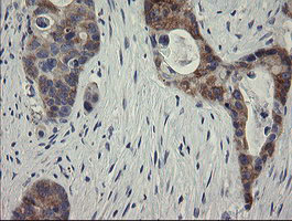 RIOK2 Antibody - IHC of paraffin-embedded Adenocarcinoma of Human colon tissue using anti-RIOK2 mouse monoclonal antibody.
