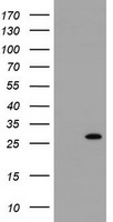 RIT2 / RIN Antibody - HEK293T cells were transfected with the pCMV6-ENTRY control (Left lane) or pCMV6-ENTRY RIT2 (Right lane) cDNA for 48 hrs and lysed. Equivalent amounts of cell lysates (5 ug per lane) were separated by SDS-PAGE and immunoblotted with anti-RIT2.