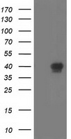 HEK293T cells were transfected with the pCMV6-ENTRY control (Left lane) or pCMV6-ENTRY RLBP1 (Right lane) cDNA for 48 hrs and lysed. Equivalent amounts of cell lysates (5 ug per lane) were separated by SDS-PAGE and immunoblotted with anti-RLBP1.