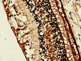 Immunohistochemistry image of paraffin-embedded human eye tissue at a dilution of 1:100