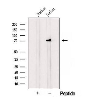 RLIM / RNF12 Antibody - Western blot analysis of extracts of HepG2 cells using RLIM antibody. The lane on the left was treated with blocking peptide.