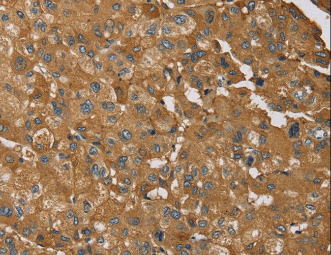 RMA1 / RNF5 Antibody - Immunohistochemistry of paraffin-embedded Human liver cancer using RNF5 Polyclonal Antibody at dilution of 1:35.
