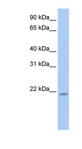 RNF5 antibody LS-C102756 Western blot of HeLa lysate.  This image was taken for the unconjugated form of this product. Other forms have not been tested.