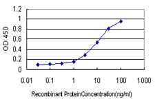 RNASEL / RNase L Antibody - Detection limit for recombinant GST tagged RNASEL is approximately 0.1 ng/ml as a capture antibody.