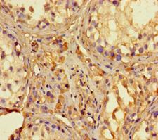 RNASEL / RNase L Antibody - Immunohistochemistry of paraffin-embedded human testis tissue using RNASEL Antibody at dilution of 1:100