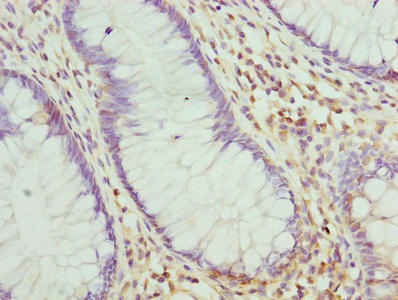 Immunohistochemistry of paraffin-embedded human colon cancer using RNF10 Antibody at dilution of 1:100
