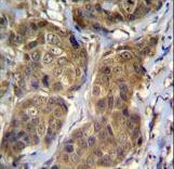RNF11 Antibody immunohistochemistry of formalin-fixed and paraffin-embedded human breast carcinoma followed by peroxidase-conjugated secondary antibody and DAB staining.