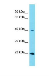 Western blot of Human Thyroid Tumor. RNF113A antibody dilution 1.0 ug/ml.  This image was taken for the unconjugated form of this product. Other forms have not been tested.